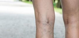 Everything You Should Know About Varicose Veins and Spider Veins