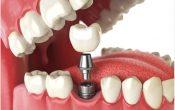 Few Tips for Choosing the Right Implant Dentist