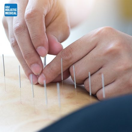 Acupuncture; How it works?