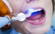 Are You Aware About Dental Sealants?