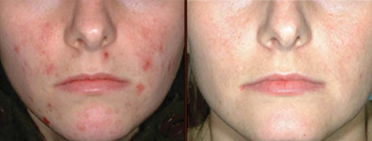 Get Rid Of Your Acne with IPL Treatment