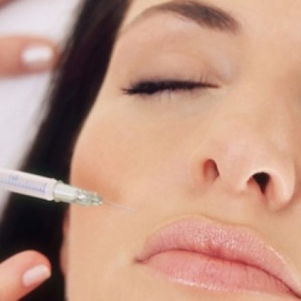 5 frequently asked questions about BOTOX®