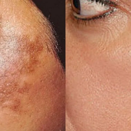LASER TREATMENT FOR HYPERPIGMENTAION