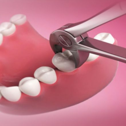Tooth Extraction:Does It Leave Lasting Trauma?