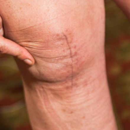8 Ways to Keep Joints Healthy and Pain-Free